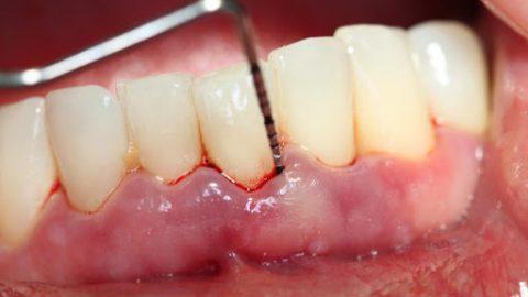 Viêm quanh cuống răng: 3 điều cần chú ý
