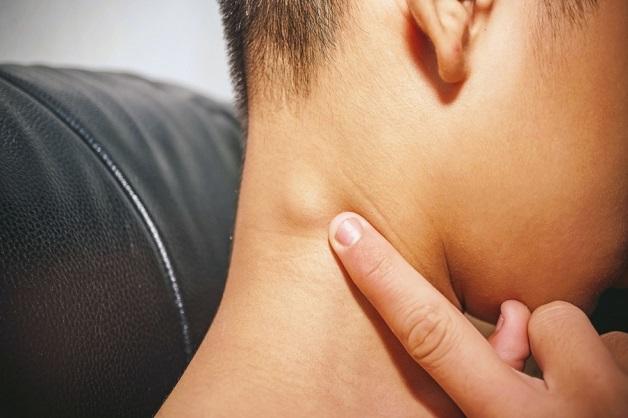 Tình trạng viêm nhiễm lan sang vùng khác sẽ gây kích ứng tổ chức xung quanh, khiến hạch vùng cổ sưng to