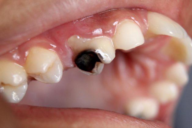Viêm tuỷ răng sữa xảy ra khi mô tuỷ răng sữa của trẻ bị viêm nhiễm, từ đó chèn ép lên dây thần kinh và khiến tình trạng đau xảy ra