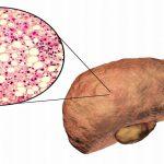 5 triệu chứng xơ gan giai đoạn đầu không thể bỏ qua