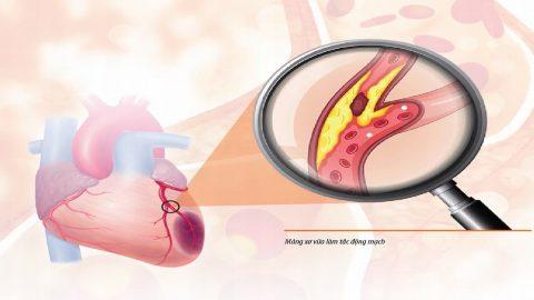 Xơ vữa động mạch vành: Nguyên nhân và cách phòng tránh