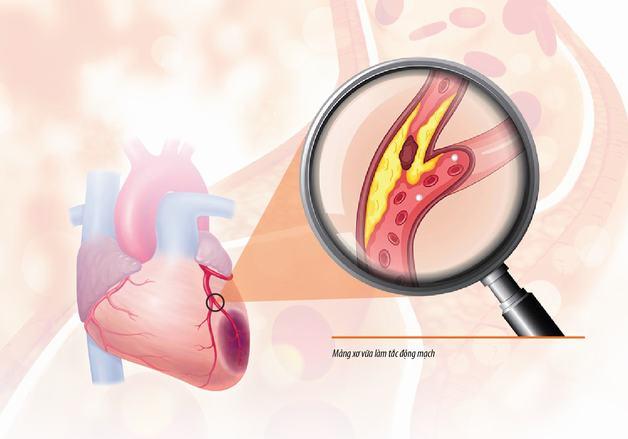 xơ vữa động mạch vành là gì