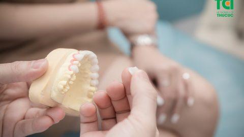 Dán răng sứ có tốt không? Làm sao giữ độ bền cho miếng dán?
