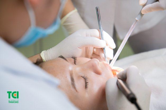 Để có thể dán răng sứ, bác sĩ sẽ thực hiện mài một lớp men răng mỏng