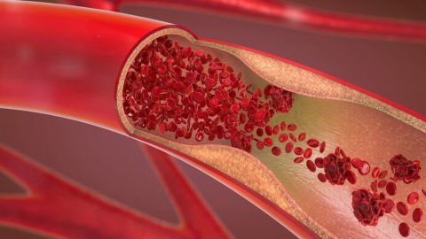 Tìm hiểu bệnh co thắt mạch vành tim