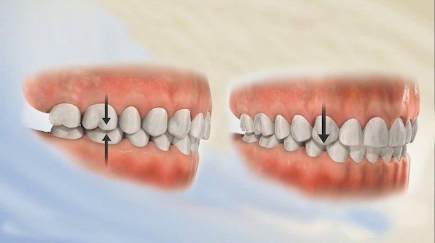 Bệnh lý về khớp cắn hay còn gọi là lệch khớp cắn, khiến sự tương quan giữa hai hàm răng trên – dưới không cân đối.