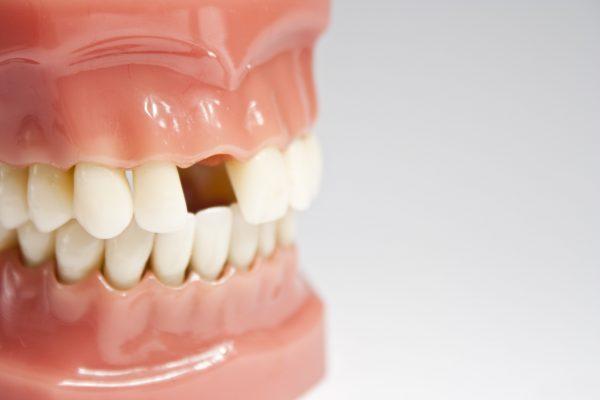 bệnh lý mất răng là bệnh gì