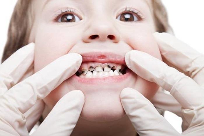 Bệnh lý răng trẻ em là nhóm bệnh có tỷ lệ mắc cao nhất ở trẻ