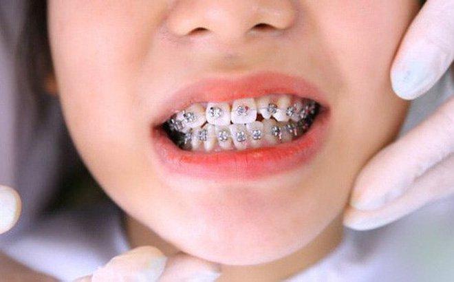 Răng trẻ bị mọc lệch cần chỉnh nha