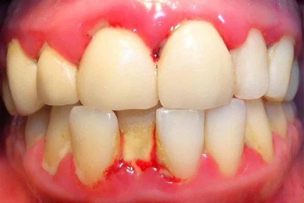 Triệu chứng bệnh nướu răng