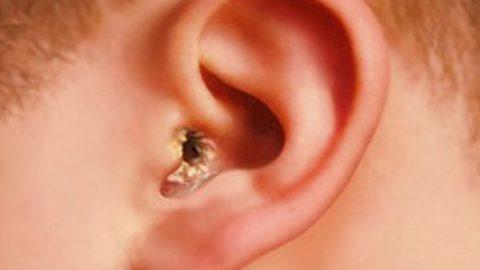 Bệnh nấm tai ngoài: Dấu hiệu nhận biết và cách điều trị
