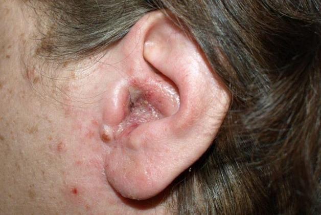 Bệnh nấm tai ngoài nguyên nhân do đâu?