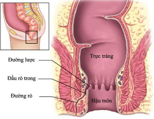 Bệnh rò ở hậu môn là giai đoạn sau của áp xe hậu môn