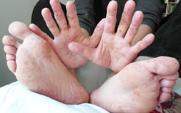 Bệnh tay chân miệng lây lan qua nhiều con đường khác nhau