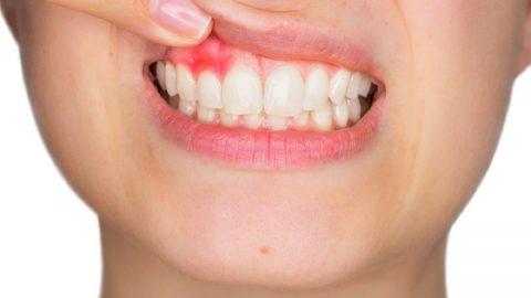 Bệnh viêm quanh cuống răng tuyệt đối đừng coi thường