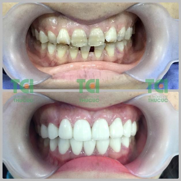 bọc răng sứ cho người răng vỡ, ố màu