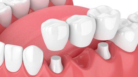 Bọc sứ răng hàm có phải giải pháp tối ưu để điều trị bệnh lý không?