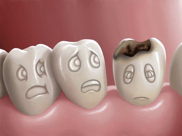 Sâu răng là một trong các bệnh lý bệnh lý về răng miệng hoàn toàn có thể khiến răng bị ê buốt