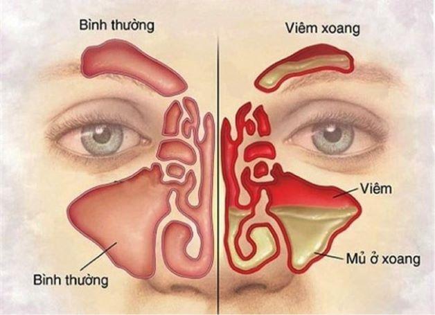 Viêm xoang là tình trạng lớp niêm mang trong mũi bị virus, vi khuẩn tấn công, gây viêm nhiễm.