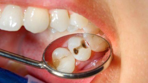 Nguyên nhân và cách chữa sâu răng cho trẻ 2 tuổi