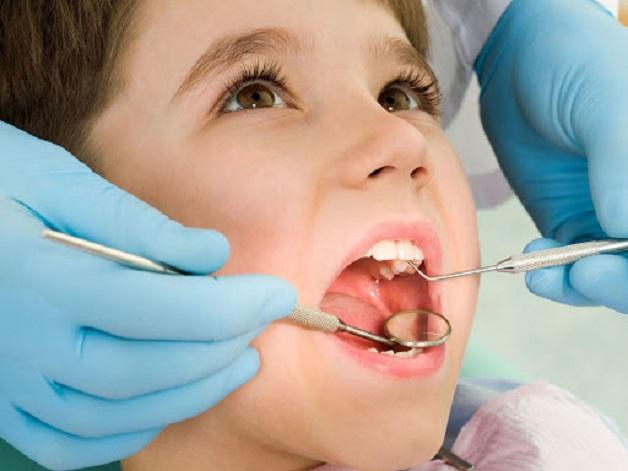 Điều trị tủy là cách chữa sâu răng cho trẻ 2 tuổi khi các vết sâu đã lan rộng đến khu vực tủy răng