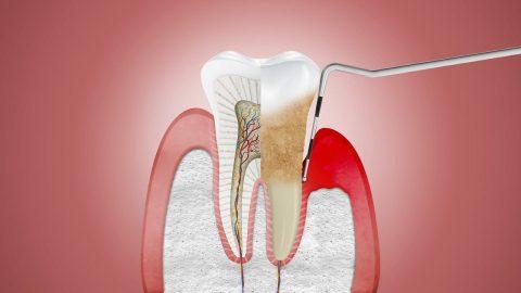"""""""Bỏ túi"""" những cách chữa viêm nha chu răng hiệu quả"""