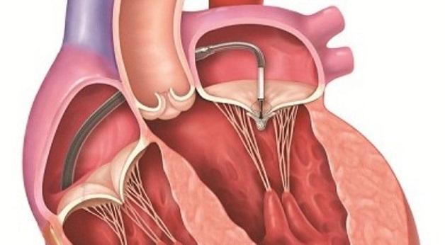 Can thiệp, phẫu thuật van tim là biện pháp cuối cùng khi bệnh hẹp van tim quá nặng, không thể chữa được