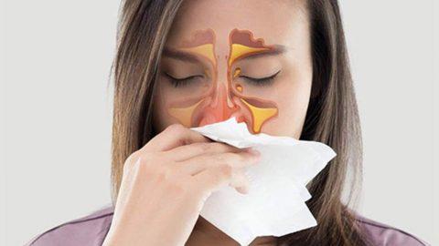 Cảnh báo biến chứng nguy hiểm từ bệnh viêm xoang cánh bướm