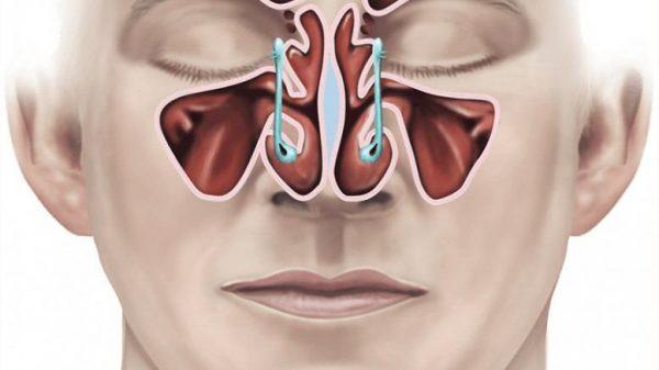 phẫu thuật cắt vách mũi xoang