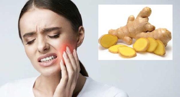 Gừng là loại thực phẩm được sử dụng nhiều trong việc điều trị bệnh lý răng miệng trong đó có đau răng.