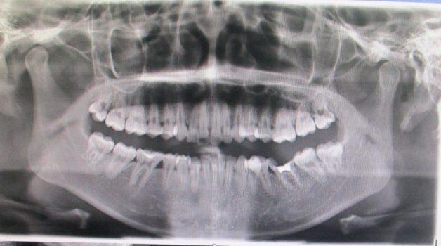 Xét nghiệm X-quang răng sẽ thu được hình ảnh dấu hiệu cận lâm sàng của viêm quanh cuống răng
