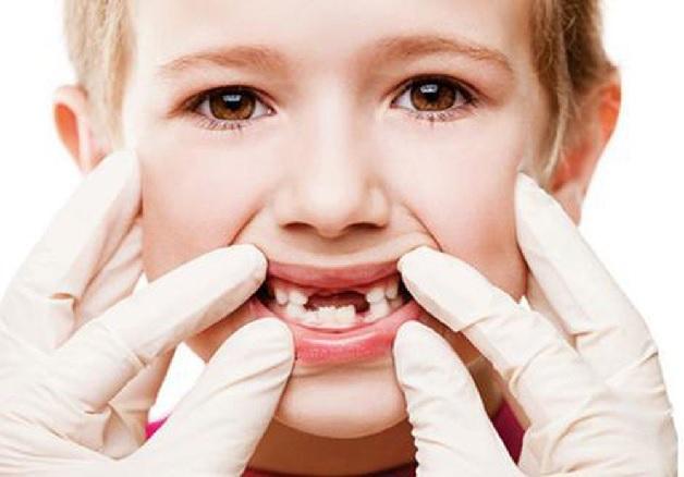 Có rất nhiều nguyên nhân khiến trẻ 6 tuổi bị sâu răng