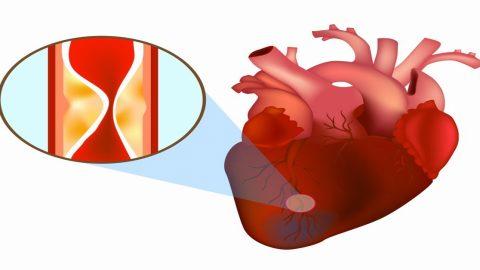 Hiểm họa tiềm ẩn từ co thắt mạch vành tim