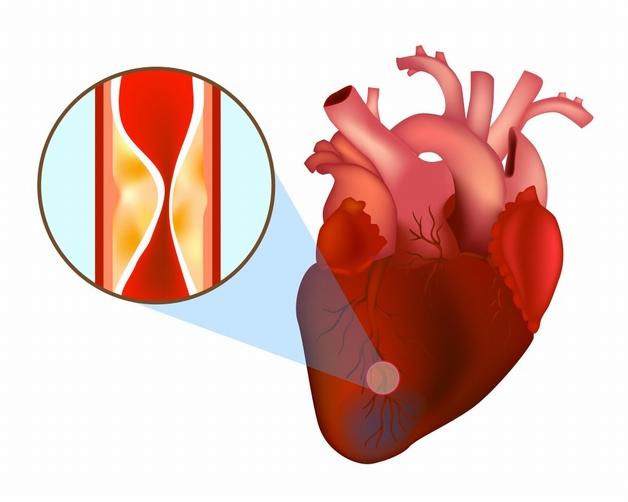 co thắt mạch vành tim là gì