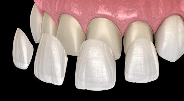 dán răng sứ veneer là gì