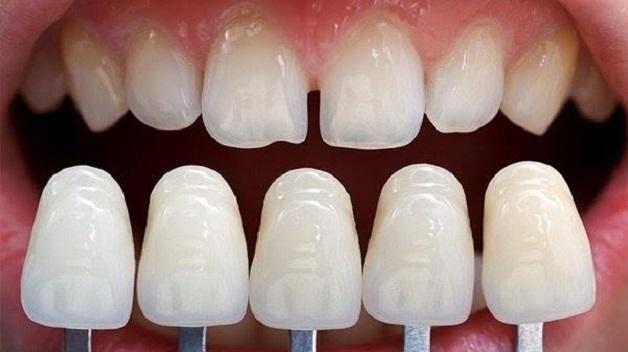Đắp khe răng thưa, bác sĩ nha khoa sẽ giảm khoảng hở của các khe thưa bằng cách tăng kích thước giữa các răng, từ đó cải thiện thẩm mỹ của hàm răng