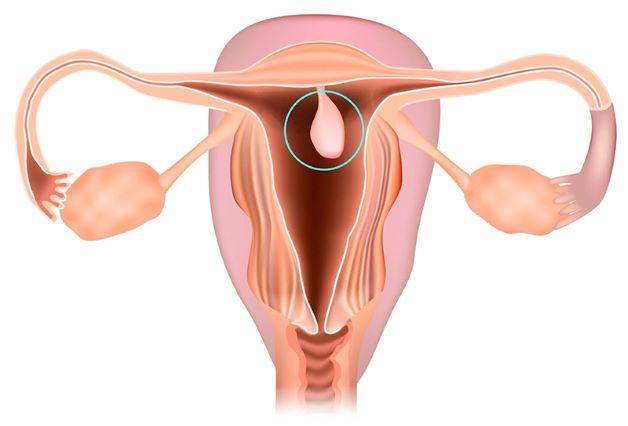 Polyp tử cung sẽ có hình dạng hình tròn hoặc bầu dục và kích thước từ vài mm đến vài cm