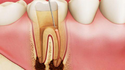 Diệt tủy răng có ảnh hưởng gì không?