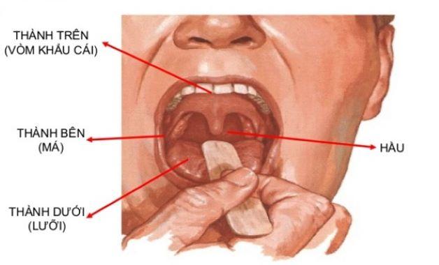 Khoang miệng nằm ở vị trí dưới khoang mũi và được giới hạn bởi môi, má, vòm miệng, sàn miệng, yết hầu.