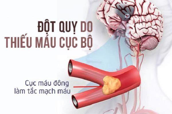 thiếu máu lên não là bệnh lý tiền đột quỵ