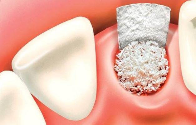 Kỹ thuật ghép xương trong quá trình trồng răng implant được xem là một phương pháp tiến bộ vượt bậc trong việc điều trị nha khoa.