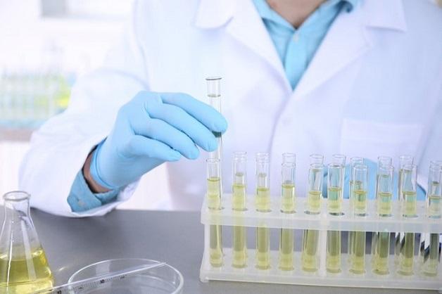 xét nghiệm protein trong nước tiểu là gì