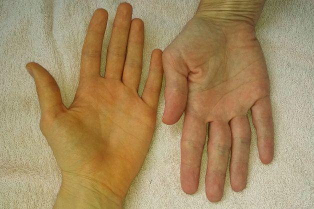 dấu hiệu ung thư tụy ngoại tiết