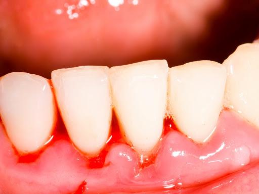 Triệu chứng chảy máu răng sẽ xảy ra khi bệnh nhân bị viêm nướu răng