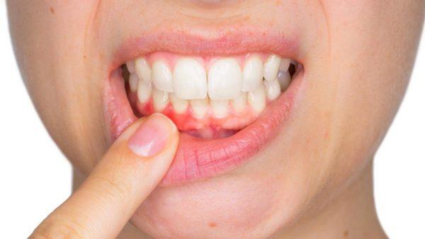 hình ảnh viêm nướu răng