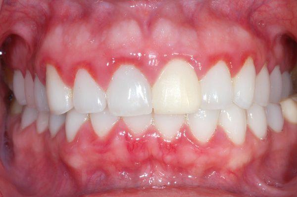 Lợi dễ bị tụt xuống , răng bị lung lay và nếu diễn tiến nặng thì có thể bị rụng răng