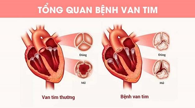Hở và hẹp van tim là 2 dạng phổ biến nhất của bệnh van tim
