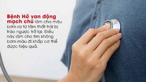 Hở van động mạch chủ nhẹ: Chớ coi thường!