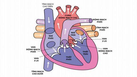 Hở van động mạch phổi 1/4 là như thế nào?