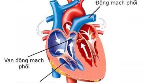 Hở van động mạch phổi nhẹ là gì? Cách chẩn đoán, điều trị